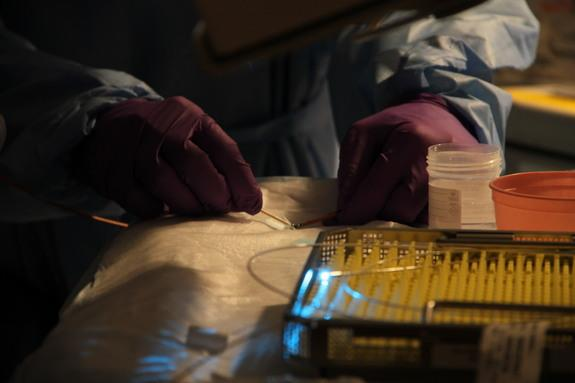 Laser Shines a Light on Intestinal Diseases