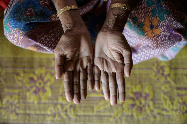 Rohingya refugee midwife Majuna Begum says that she uses gloves -- if they are available -- to deliver babies, but if not uses her bare hands