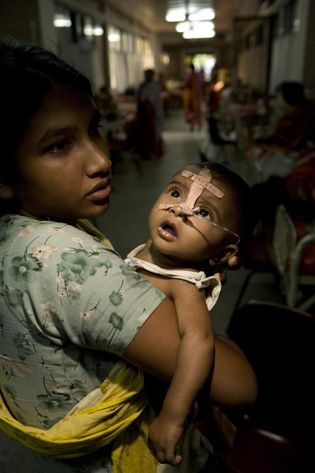 DHAKA, BANGLADESH - APRIL 25: A girl holds a sick baby at the ICDDR,B Cholera Hospital in Dhaka, Bangladesh on April 25, 2006. At times nearly 1000 patients with diarrhea are admitted every day to the ICDDR,B hospital, locally known as the Cholera hospital. Most of the tiny patients confined to the children's ward are weak, malnourished and dehydrated. They've suffered attack after attack of diarrhea and, in some cases, are clinging to life. But many children never reach a treatment center and die from dehydration as they lose critical body fluids faster than they can be replaced. Four million people live in squatter settlements, around the city, without access to clean water, and terrible sanitary conditions. Water contamination, extreme poverty, and lack of hygiene lead to severe diarrheal diseases and Cholera. In a country where seasonal floods inundate almost one-third of the country every year, diarrheal diseases are a fact of life, and a fatal reality. 3 million people a year still die from diarrheal complications, including 1.9 million children under 5. (Photo by Jonathan Torgovnik/Getty Images)