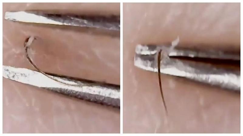 Tweezist Ingrown Hair Trend Is The New Dr Pimple Popper