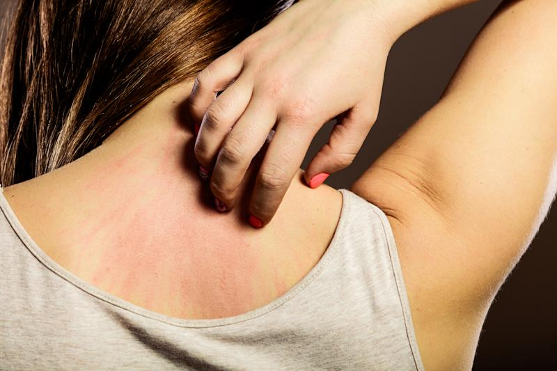 Itchy skin is one of the lesser-known symptoms of the menopause [Photo: Getty]