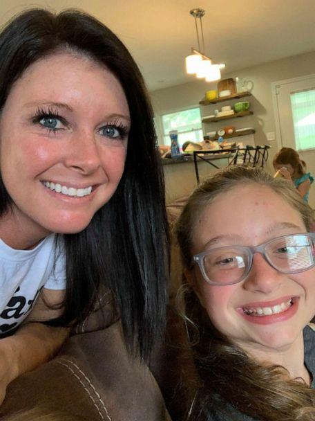 PHOTO: Alicia Renee Phillips, a mom of three from Clinton, Tennessee, took to Facebook on July 7, to describe how styling her sister Gracie Brown's hair strangely led to an emergency room visit. (Alicia Renee Phillips)
