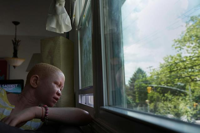<p>Pendo Noni, 16, a Tanzanian with albinism who had an arm chopped off in a witchcraft-driven attack, looks out of the window at the Global Medical Relief Fund house in the Staten Island borough of New York City, June 2, 2017. (Photo: Carlo Allegri/Reuters) </p>