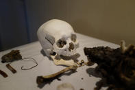 The skull of Giichi Matsumura is seen at Brune Mortuary in Bishop, Calif., Monday, Feb. 17, 2020. Giichi Matsumura was a prisoner at the Manzanar internment camp during World War II and died on a hike in the nearby Sierra in the waning days of the war in August 1945. Hikers discovered his mountainside grave and unearthed the skeleton in 2019, leading authorities to retrieve the bones and return them to the Matsumura family. (AP Photo/Brian Melley)