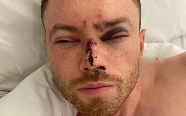 Corry Evans after recovering from a fractured skull - Corry Evans