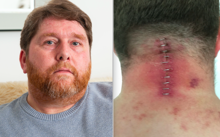Stuart Clegg suffered horrific injuries when a glass door collapsed on top of him. (SWNS)