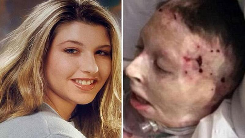 Judy Malinowski, a former beauty queen, was deliberately set on fire by her then-boyfriend Michael Slager. Photos: Facebook/ Supplied