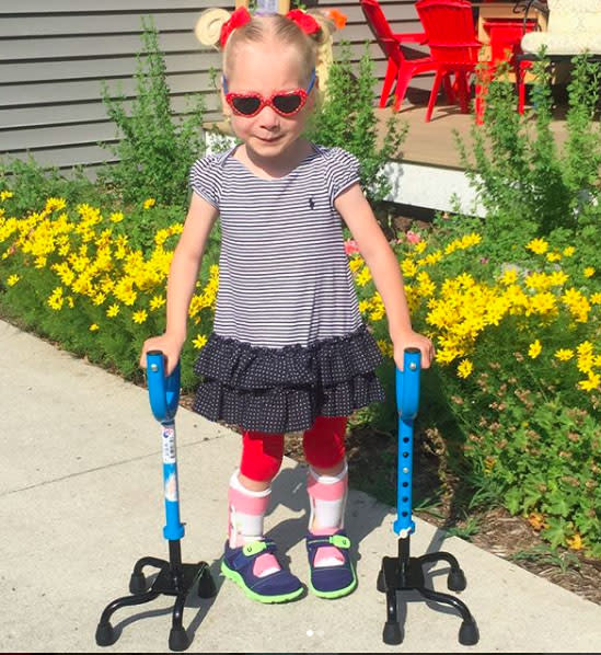 Four-year-old girl with cerebral palsy takes first steps
