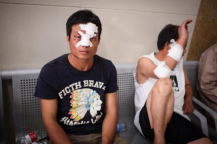 Injured migrant workers wait for further treatment at Gangkou hospital in Tianjin, following a series of explosions at a warehouse in the northern Chinese city, early on August 13, 2015 (AFP Photo/Benjamin Haas)