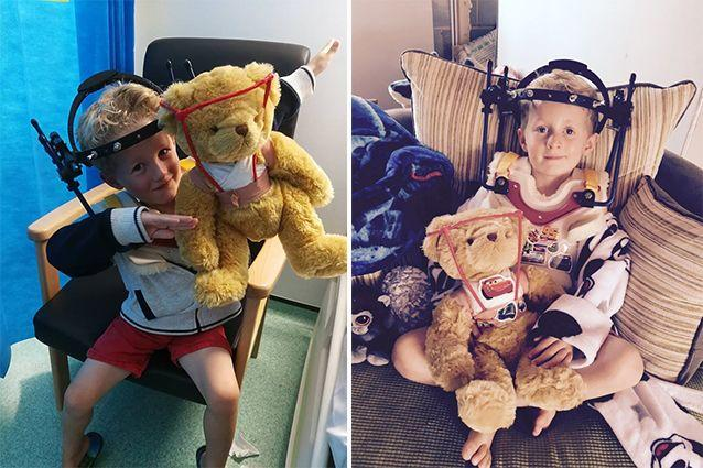 But the little boy's break was not diagnosed for five weeks after his accident. Source: SWNS
