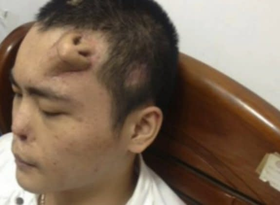 Man's 'Forehead Nose' a Common Reconstruction Technique