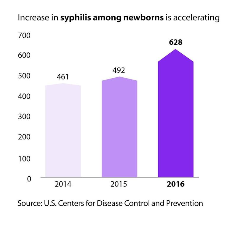Congenital syphilis cases spiked by 28 percent from 2015 to 2016.
