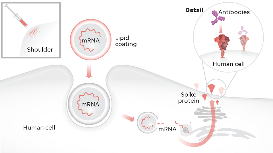 Moderna's COVID-19 vaccine relies on mRNA – messenger ribonucleic acid – to get our cells to produce a virus-free spike protein. The vaccine delivers mRNA into the body's cells in a lipid coating, like a fat bubble. Once inside, the cell produces spike proteins similar to those on the surface of SARS-CoV-2. Our immune system recognizes those vaccine-created spike proteins as invaders and creates antibodies to block future attacks.