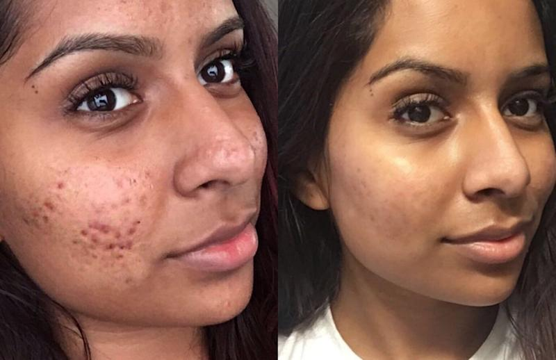 This woman's cystic acne routine has set Twitter ablaze, but
