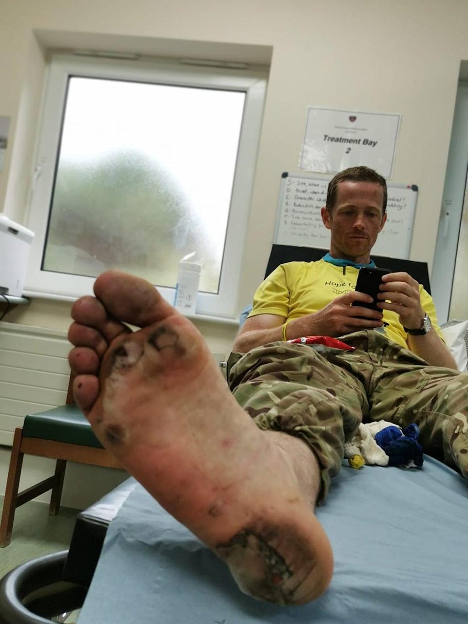 Major Chris Brannigan suffered blisters and infections during his previous barefoot trek (Chris Brannigan/PA)