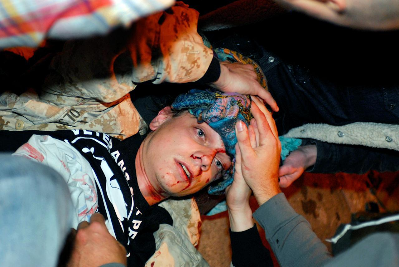 In this photo taken Tuesday, Oct. 25, 2011, 24-year-old Iraq War veteran Scott Olsen lays on the ground bleeding from a head wound after being struck by a by a projectile during an Occupy Wall Street protest in Oakland, Calif. Olsen suffered a fractured skull while marching with other protesters attempting to reestablish a presence in the area of the disbanded camp, said Dottie Guy, of the Iraq Veterans Against the War. Police Chief Howard Jordan says an internal review board and local prosecutors have been asked to determine if officers on the scene used excessive force. (AP Photo/Jay Finneburgh)