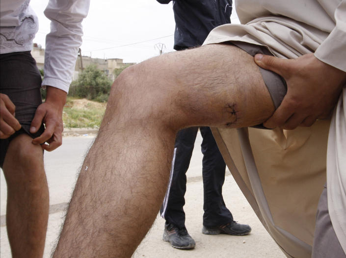 In this picture taken during a UN observer-organized tour, anti-Syrian regime men show their injuries to the UN observers during their visit to Hama city, central Syria, on Thursday, May 3, 2012. Syrian security forces stormed dorms at a northwestern university to break up anti-government protests there, killing at least four students and wounding several others with tear gas and live ammunition, activists and opposition groups said Thursday. (AP Photo/Muzaffar Salman)