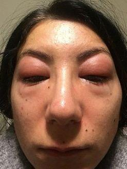 Isabelle Kun's face swelled up in reaction to the glue her eyelash technican used. Source: Isabelle Kun