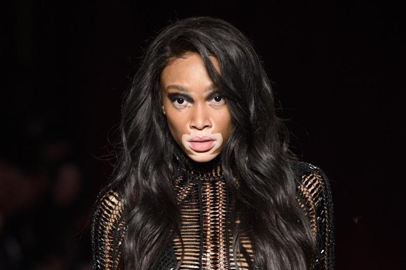 Model Winnie Harlow rose to fame after appearing in America's Next Top Model in 2014: PA Archive/PA Images