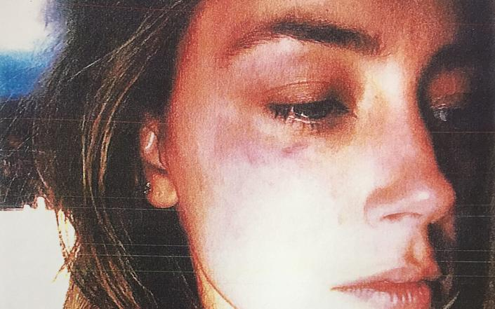 Amber Heard claims she suffered bruises - PA