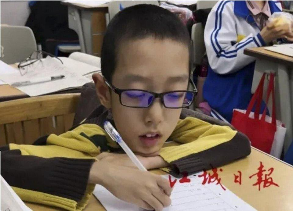Xing weighs only 18kg and uses a wheelchair with the help of his parents, who must wake every two hours to turn him over. Photo: weixin.qq.com