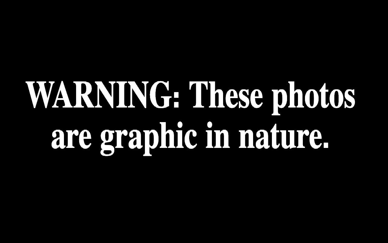 <p>Warning: These photos are graphic in nature. </p>