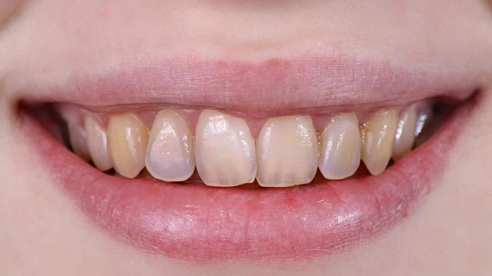 Four home remedies to remove accumulated tartar from teeth