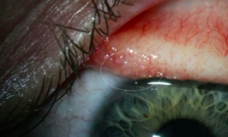 An Oregon woman found herself infected with 14 parasitic worms in her eyeballs.