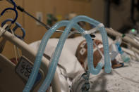 FILE - In this Nov. 19, 2020, file photo, ventilator tubes are attached to a COVID-19 patient at Providence Holy Cross Medical Center in the Mission Hills section of Los Angeles. The surge of coronavirus is taking an increasingly grim toll across the United States, even as of a vaccine appears close at hand. (AP Photo/Jae C. Hong, File)