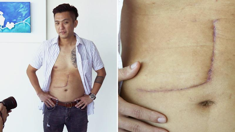 Hanwei showing media on 11 July, 2019, his scar from the liver donor operation in May. (PHOTO: Dhany Osman/Yahoo News Singapore)