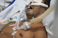 An intubated COVID-19 patient is treated in the ICU of a field hospital built inside a gym in Santo Andre, on the outskirts of Sao Paulo, Brazil, Thursday, March 4, 2021. (AP Photo/Andre Penner)