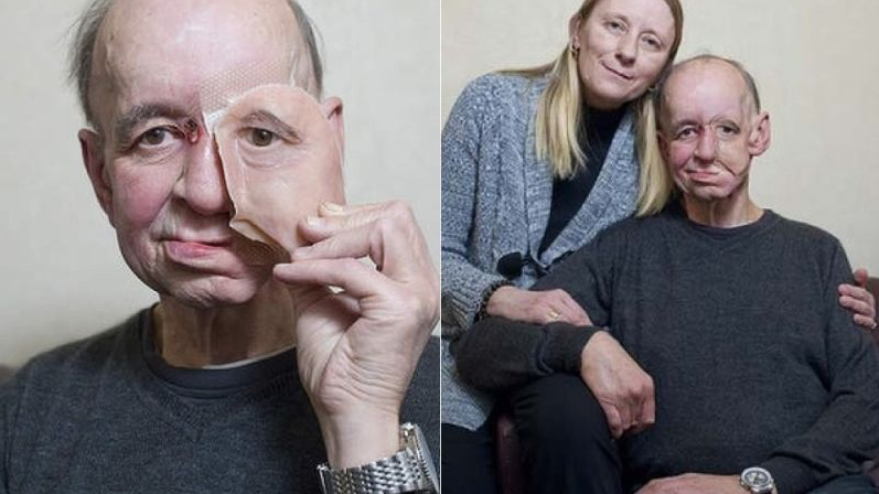 """<p>Doctors in the UK were able to produce a <a href=""""http://www.telegraph.co.uk/news/9962798/How-doctors-printed-my-new-face.html"""" rel=""""nofollow noopener"""" target=""""_blank"""" data-ylk=""""slk:3D-printed prosthetic face"""" class=""""link rapid-noclick-resp"""">3D-printed prosthetic face</a> for this man in 2013 after the removal of a large tumor left him disfigured. <i>(Photo: Geoff Pugh/Telegraph)</i></p>"""