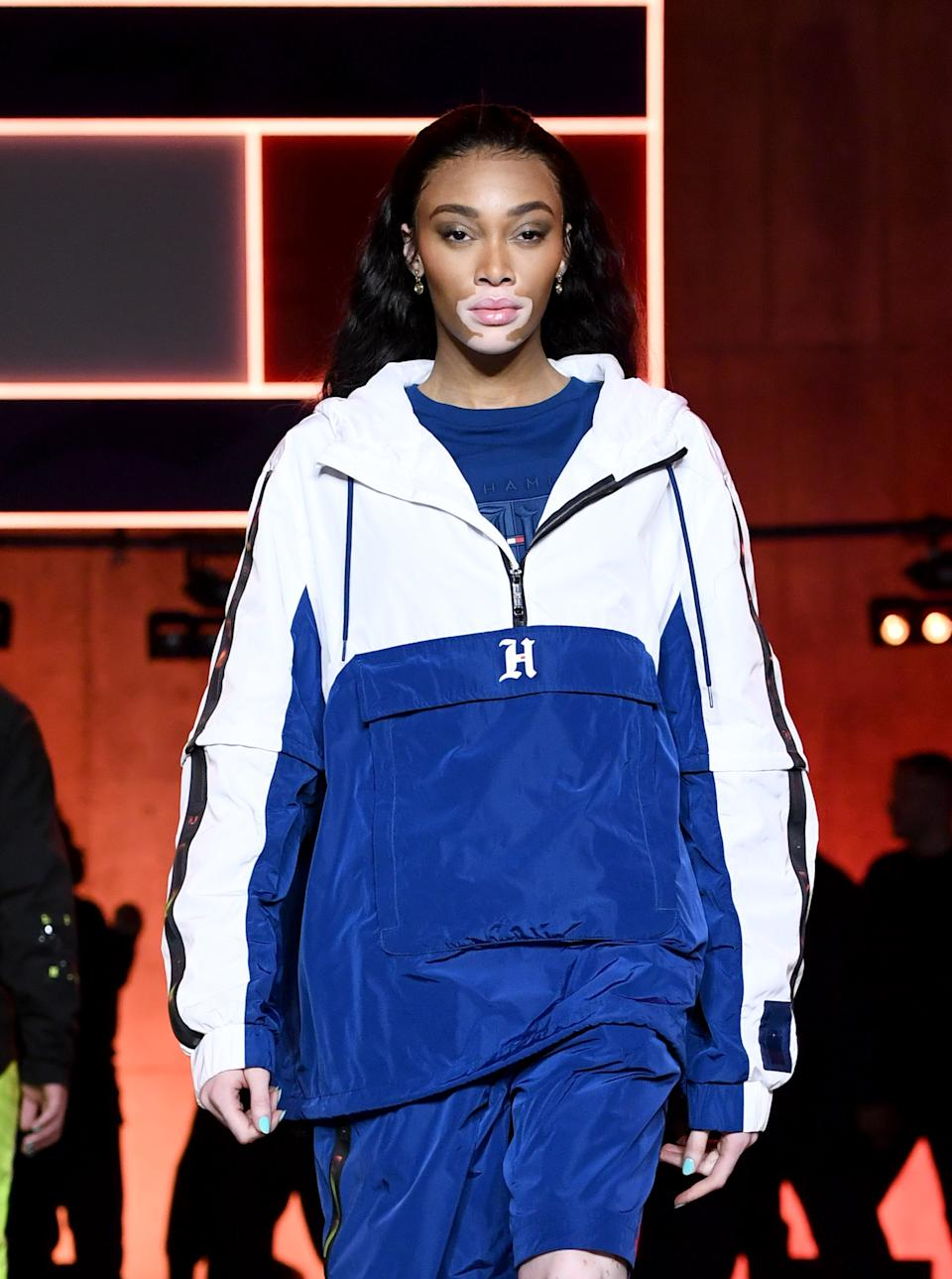 Winnie Harlow walks the runway at the Tommy Hilfiger show during London Fashion Week. (Getty Images)