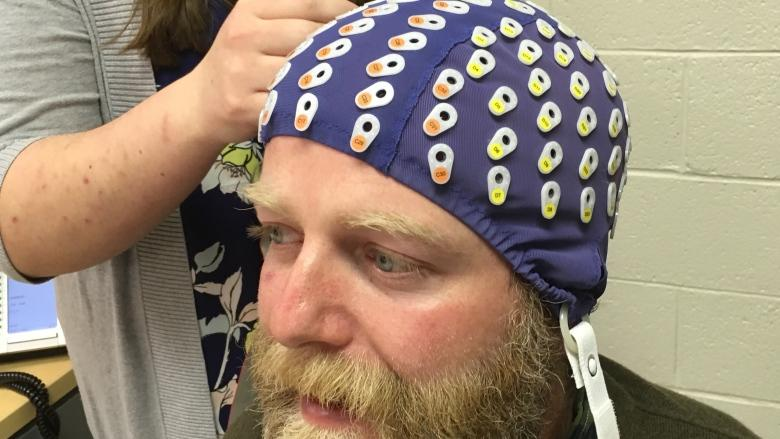 Study on ex-CFLers shows 'shocking' severity of brain changes from football