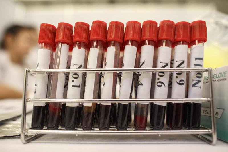 This New Test Can Identify A Blood Type In Under A Minute