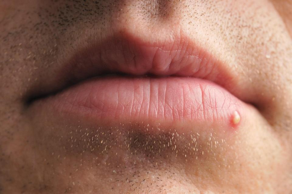 Pimples and cold sores may look similar, but they are very different. Here, see photo evidence of their differences, plus how to treat them, according to dermatologists.