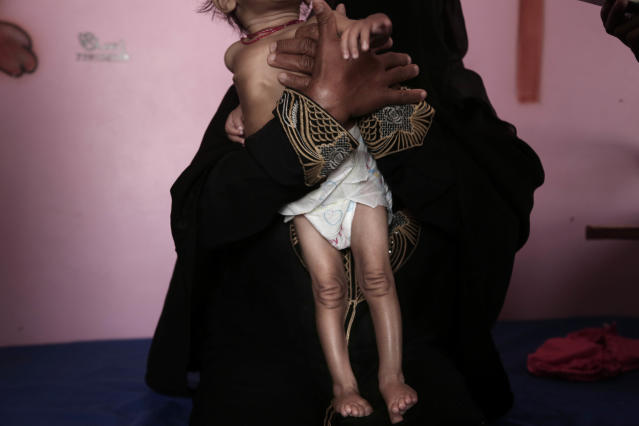 <p>Aisha, a Yemeni woman, holds up her emaciated 9-month old daughter, Galila, who suffers from malnutrition and malaria, at the Stabilization Nutritional Therapeutic center in al-Khoukha, Yemen, in this Feb. 12, 2018 photo. Galila weighed 4.5 kilograms (9.9 pounds), compared to the average of 6 to 8 kilograms (13-17 pounds) for a 9-month-old girl. Her mother is tiny as well, ravaged by giving up food for a family that is constantly growing. (Photo: Nariman El-Mofty/AP) </p>
