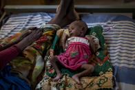 Abeba Gebru, 37, from the village of Getskimilesley, sits with her malnourished daughter, Tigsti Mahderekal, 20 days old, in the treatment tent of a medical clinic in the town of Abi Adi, in the Tigray region of northern Ethiopia, on Tuesday, May 11, 2021. For every mother like Abeba who makes it out, hundreds, possibly thousands, are trapped behind the front lines or military roadblocks in rural areas. (AP Photo/Ben Curtis)