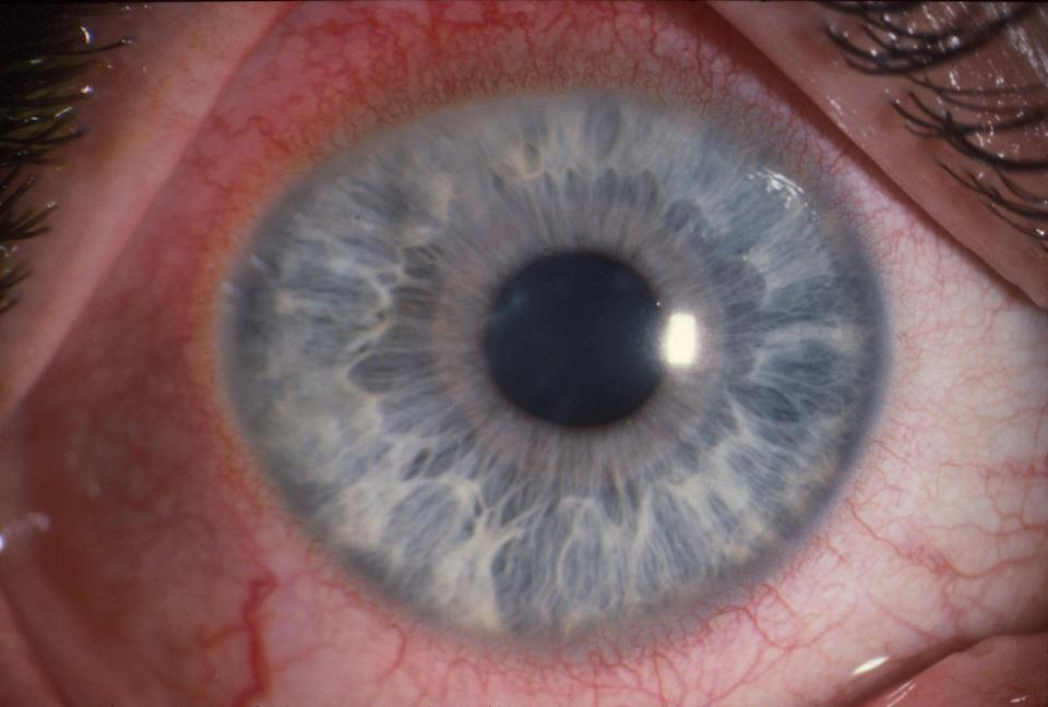 The warning comes after a study in the British Journal of Ophthalmology