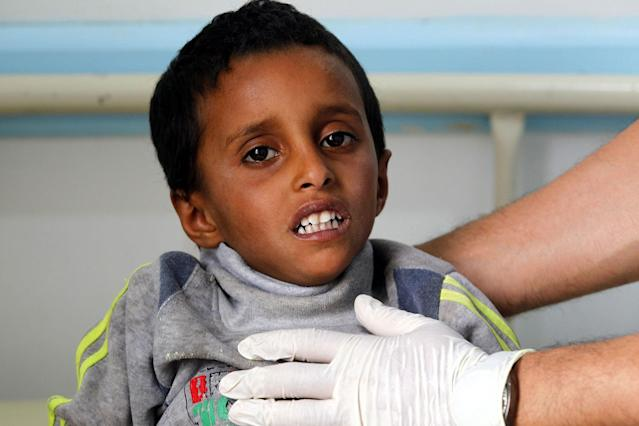 <p>A Yemeni child suspected of being infected with cholera receives treatment at a hospital in Sana'a, Yemen on June 15, 2017. (Yahya Arhab/EPA/REX/Shutterstock) </p>