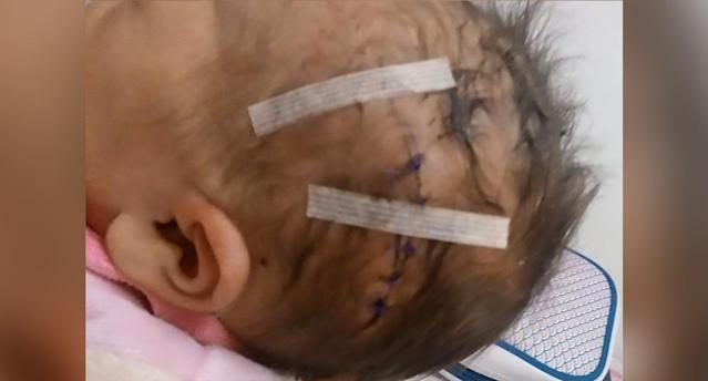 The child needed six stitches after the gynaecologist allegedly sliced her head with a scalpel by accident. Source: CEN/Australscope