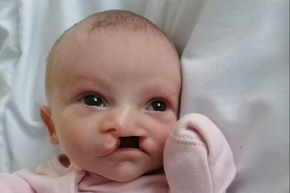 <p>Two-week-old baby girl Felicity-May, who had a cleft palette, died in hospital on Monday</p> (GMP)