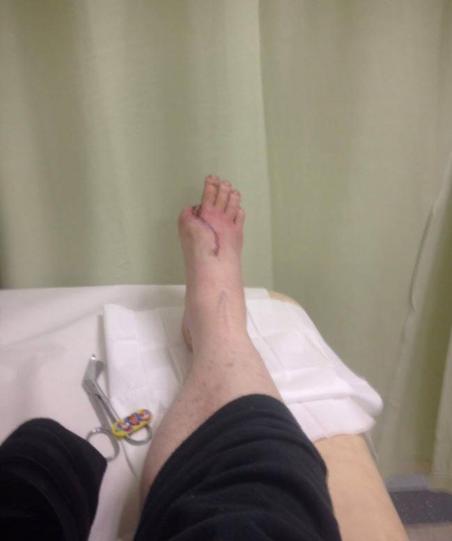 Surgeons removed David's right big toe and attached it to his hand so he can work again (Picture: SWNS)