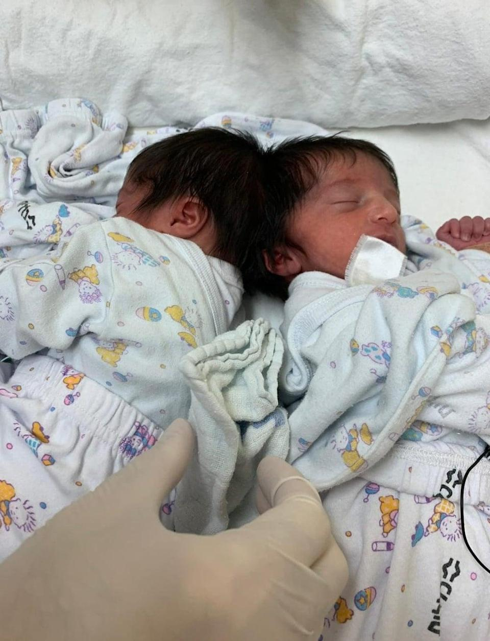 The twins were successfully separated (Soroka Medical Centre/PA)