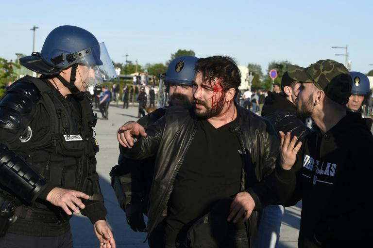 French police (L) talk to a fan injured during clashes with Besiktas supporters outside of the Parc Olympique Lyonnais stadium on April 13, 2017 in Decines-Charpieu, near Lyon