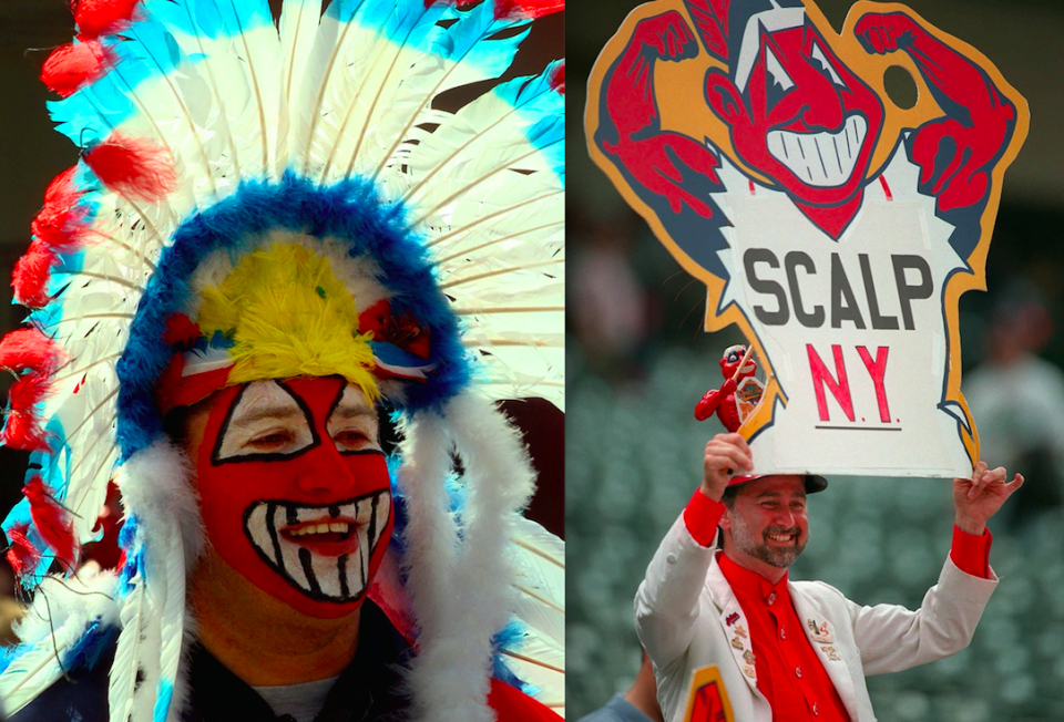 One Indians fan is hoping to get his Chief Wahoo tattoo removed. (AP Photos)