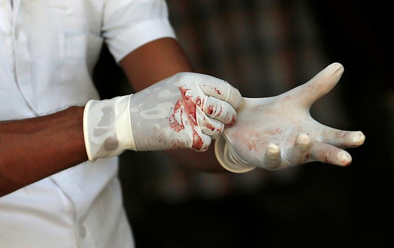 Blood on gloves of a police mortuary official is seen as he waits for casualties after an explosion at St. Anthony's Shrine, Kochchikade church in Colombo