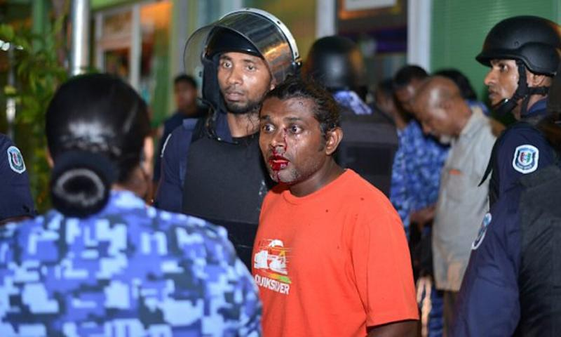 Maldives security personnel speak with an injured activist after an anti-government rally in Male, May 2, 2015 (AFP Photo/Mohamed Sharuhaan)