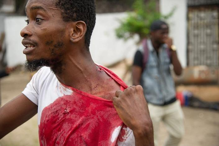 A man shows his injuries on September 20, 2016 near the offices of the main opposition Union for Democracy and Social Progress party which were torched overnight in Kinshasa (AFP Photo/Junior D. Kannah)
