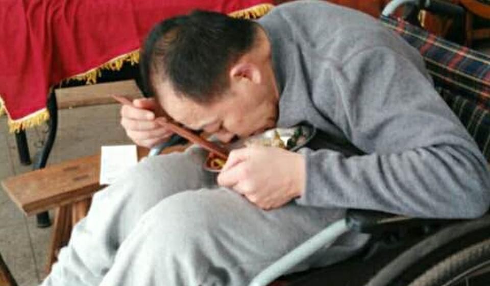 Before the surgery, Li Hua's mother had to position a bowl for him to eat from. Photo: Handout